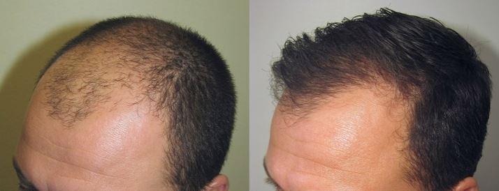 Greffe de cheveux, un traitement de chirurgie esthétique