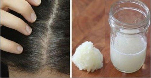 Comment éviter et traiter naturellement la perte de cheveux ?