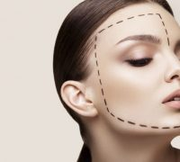 Femme avant intervention Botox