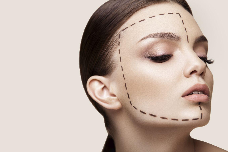 5 choses à vérifier avant de faire des injections de Botox