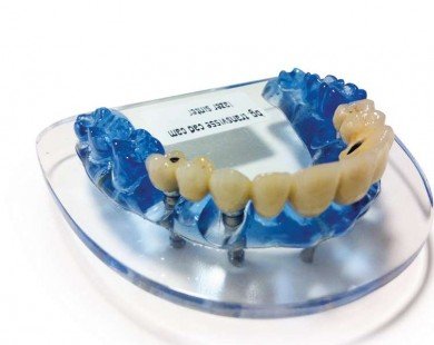 Zoom sur l'implant dentaire