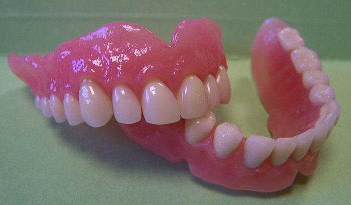 Quel type de prothèse dentaire est fait pour vous ?