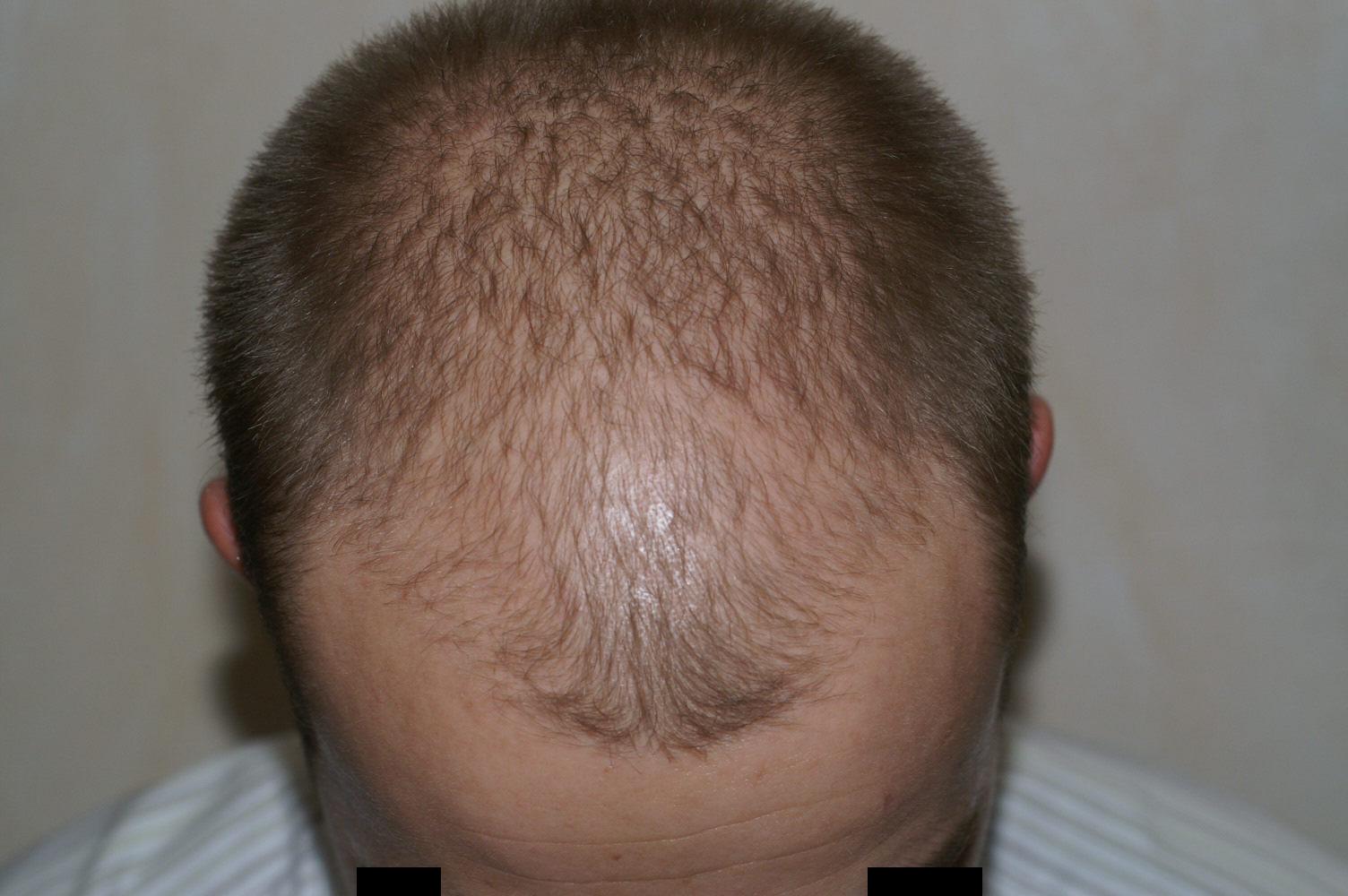 Lutter contre la chute des cheveux grâce à la greffe capillaire
