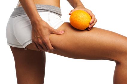 Les cellulites et ses remèdes