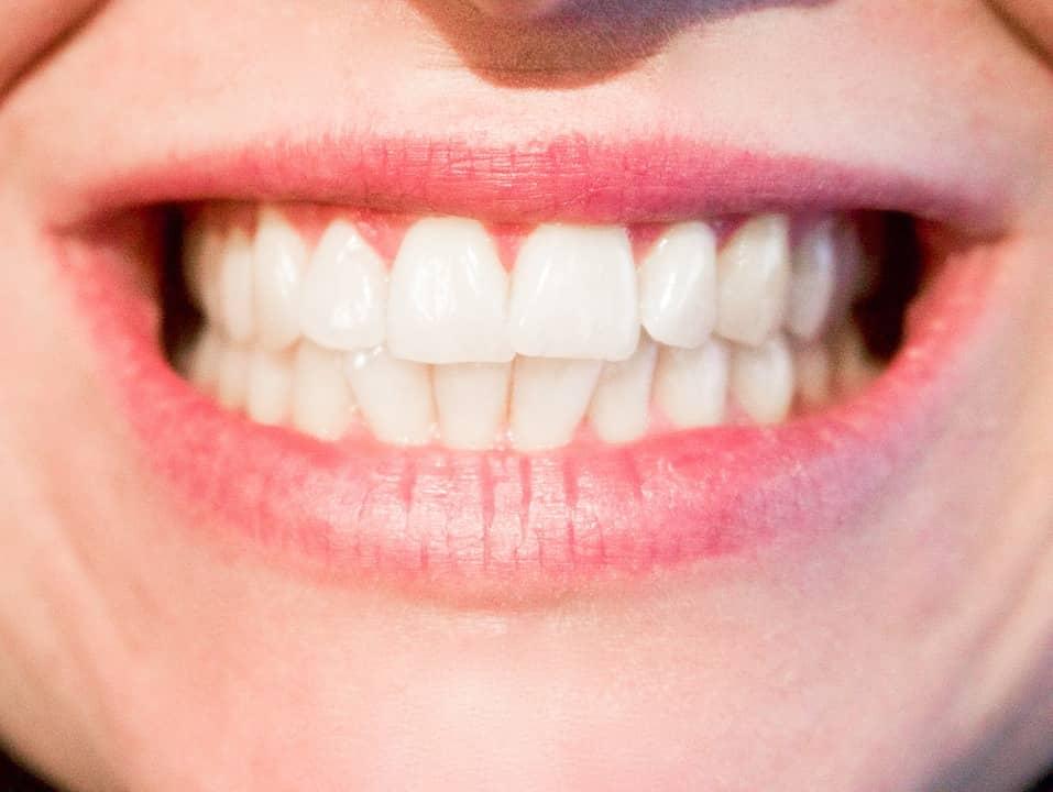 Implant dentaire: la notoriété Hongroise en fabrication
