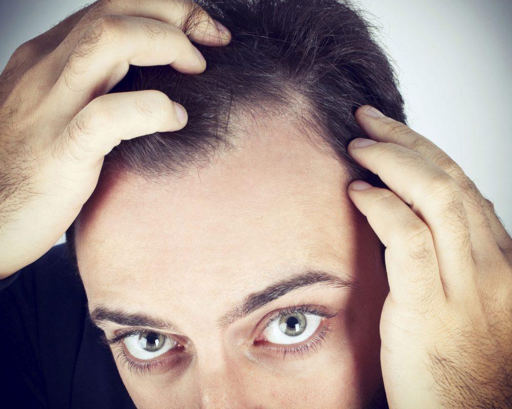 La beauté des cheveux et la calvitie