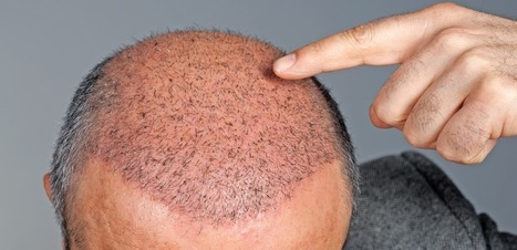 Combattre la calvitie grâce à la restauration capillaire