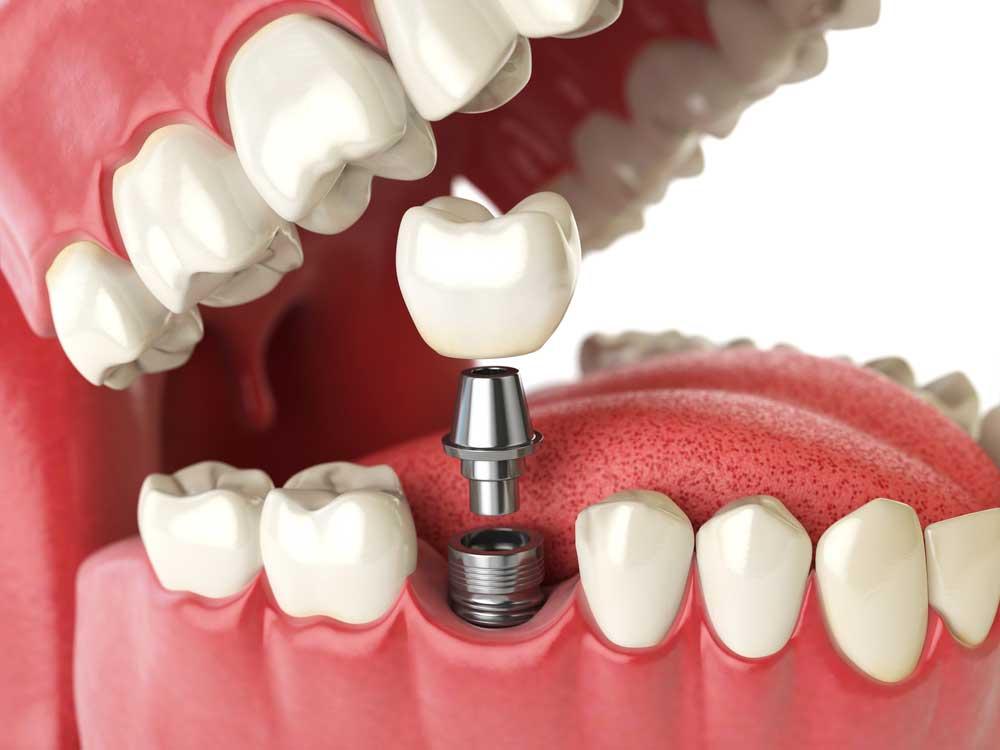 De A à Z sur l'implant dentaire