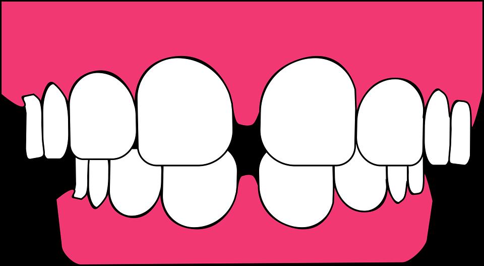 Santé dentaire : tout sur la greffe gingivale