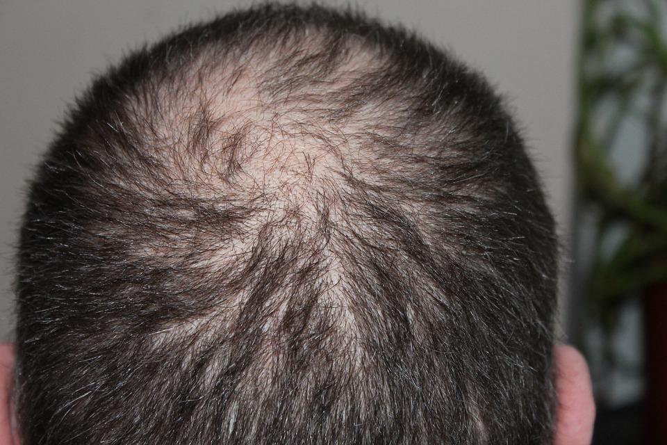 Techniques utilisées par les spécialistes de la greffe de cheveux