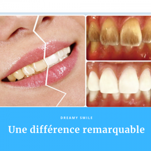 Blanchiment des dents avec Dreamy Smile